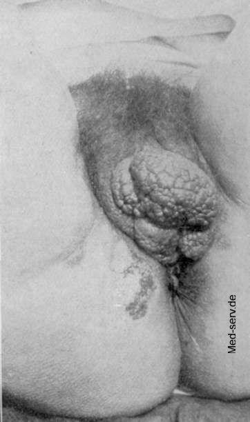 Pickel/Beule an der Vagina? Frauenarzt, Scheide, Eiter