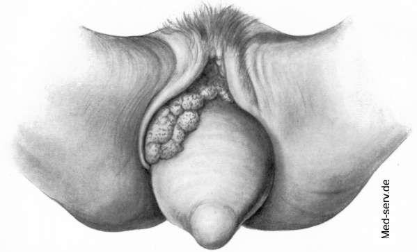 Normale Farbe der Vulva